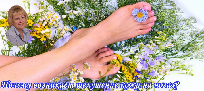 шелушение кожи на ногах